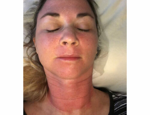 Dr. Grell's Halo Laser Treatment Experience